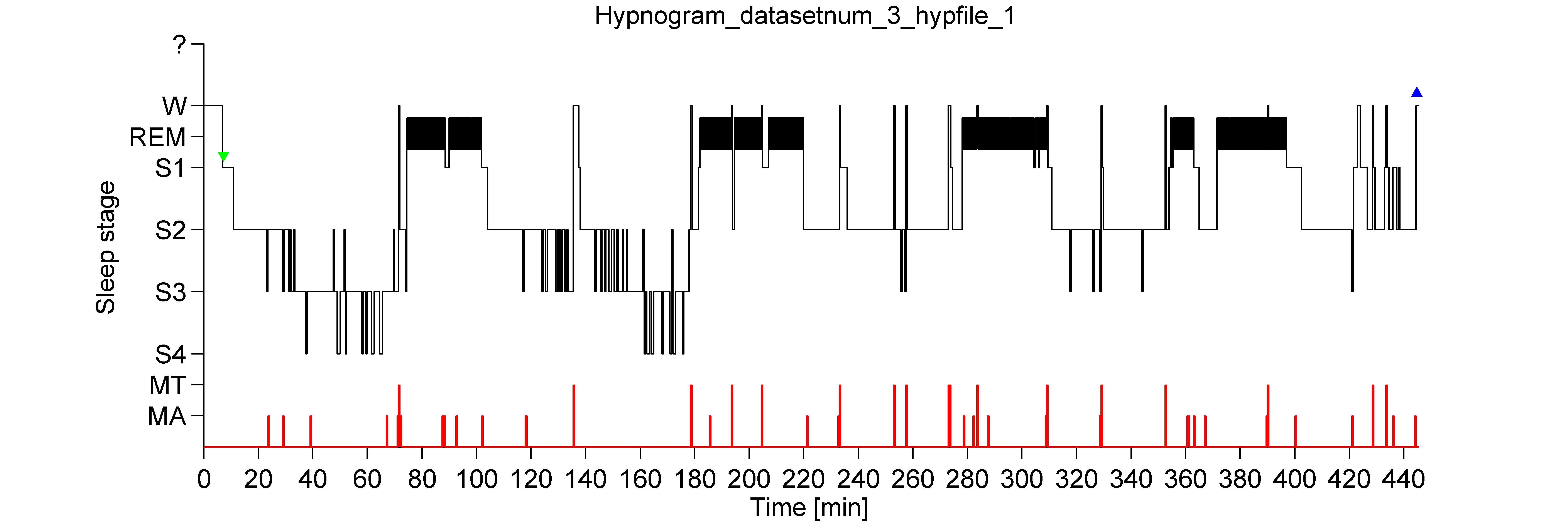 hypnogram_generated
